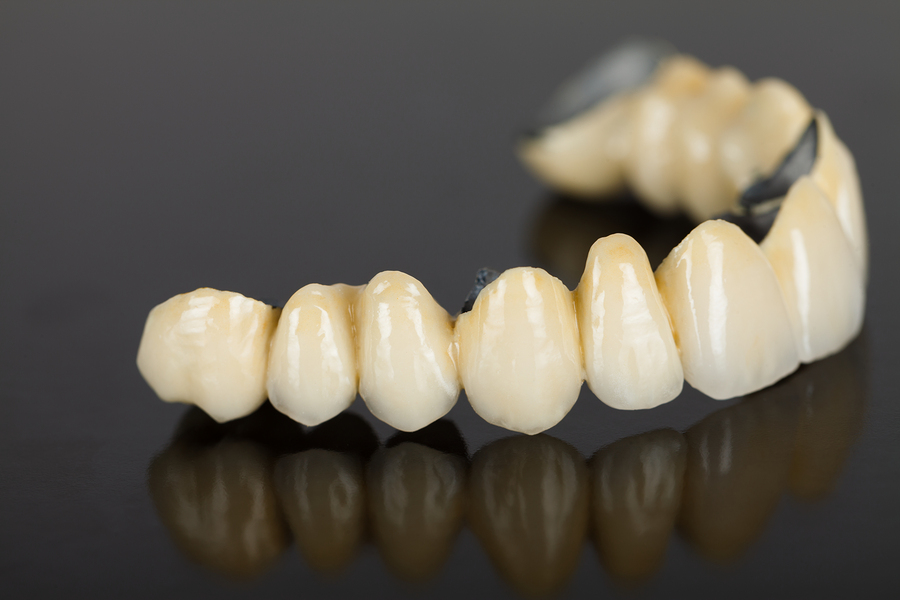 bigstock-Porcelain-Teeth--Dental-Bridg-48878828